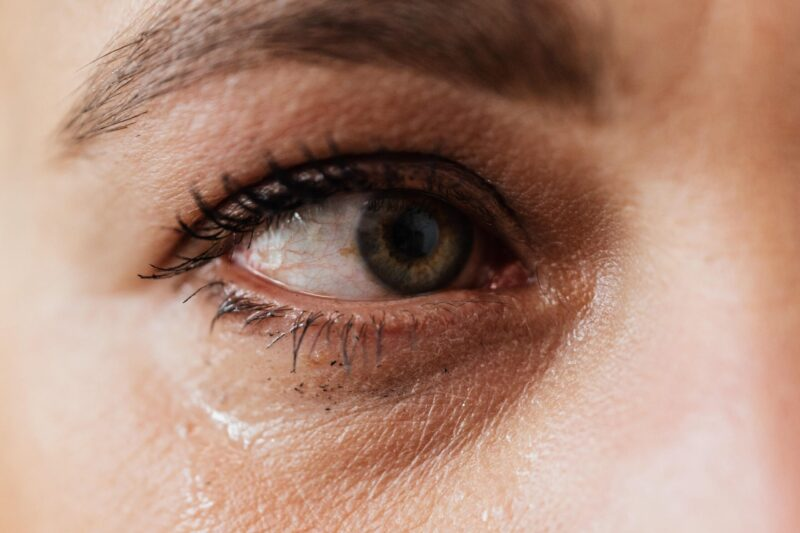 Why do my eyes burn when I cry? Potential causes and treatments