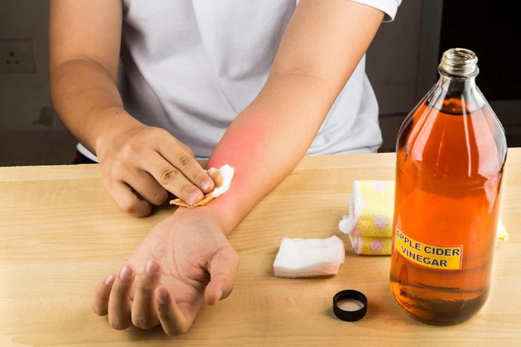 Removing skin tags with apple cider vinegar
