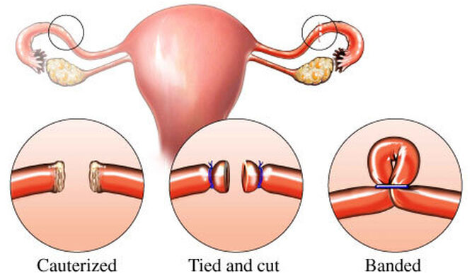 What is tubal ligation
